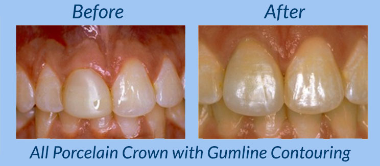 All Porcelain Crown with Gumline Contourimg