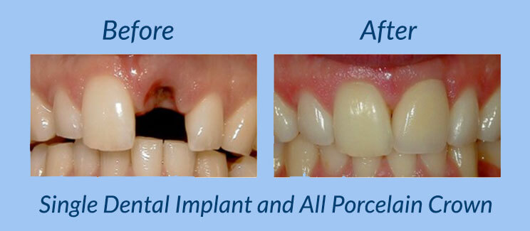 Single Dental Implant and All Porcelain Crown