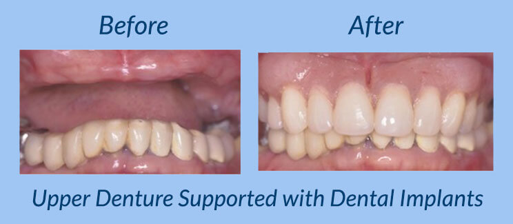Upper Denture Supported with Dental Implants