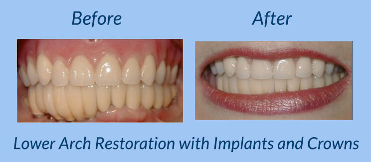 Lower Arch Restoration with Implants and Crowns