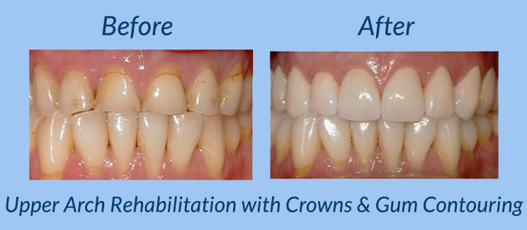 Upper Arch Rehabilitation with Crowns & Gum Contouring