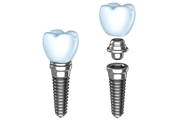 Single Tooth Dental Implants in Pomona & Brooklyn