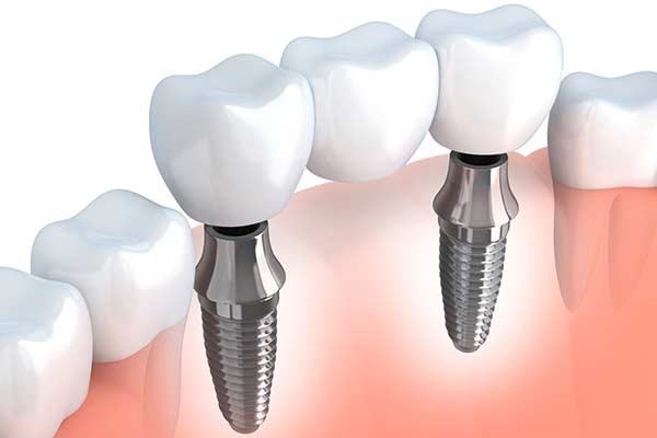 Implant Supported Bridges Guided Implant Placement in Pomona & Brooklyn