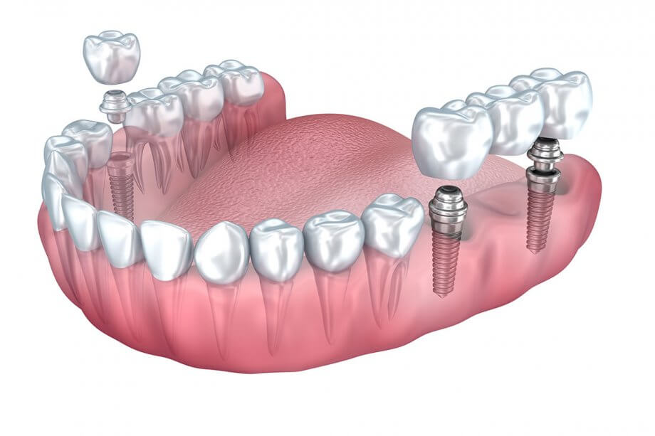 Dental Implant vs Bridge: Know Your Options