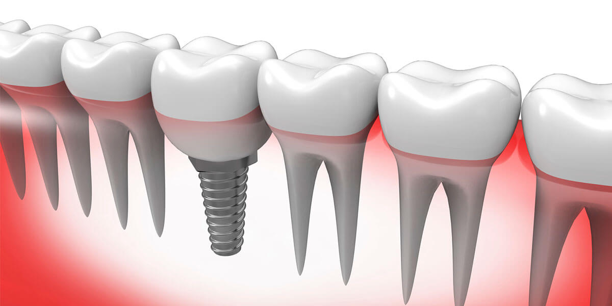 Single Dental Implants in Pomona & Brooklyn