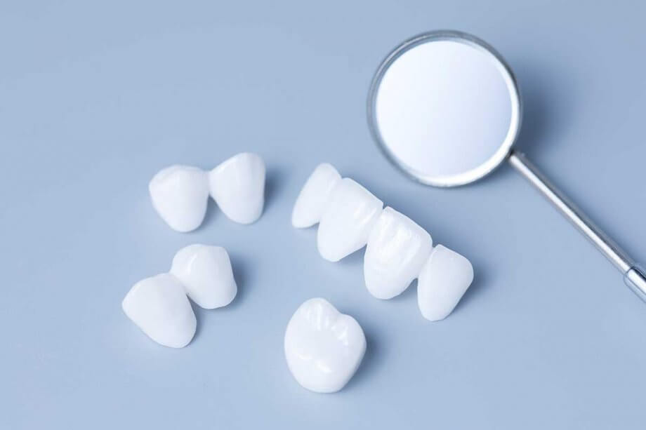How Porcelain Veneers Can Improve Your Smile